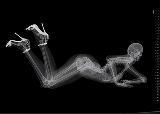 X-ray pinups: Boners for bones