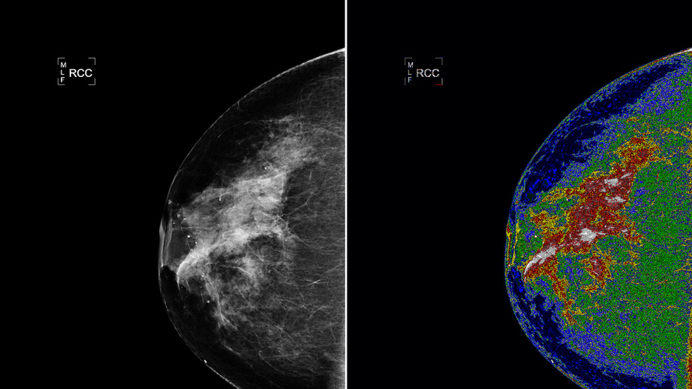 A Mammogram Made By NASA