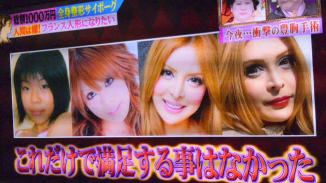 """Why This Japanese Woman Turned into a """"Plastic Surgery Cyborg"""""""