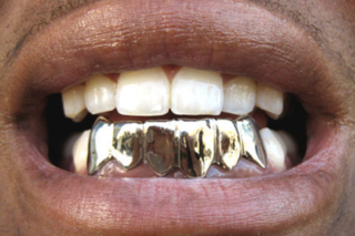 Grillz for iPhone Gallery
