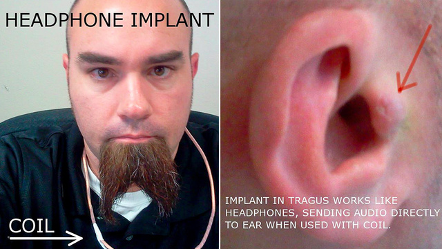 This Guy Has an Invisible Headphone Implanted In His Ear