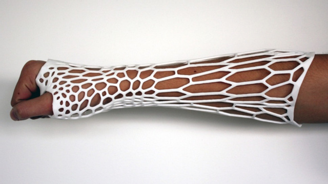 It's Almost Worth Breaking Your Arm for this Crazy 3D-Printed Cast