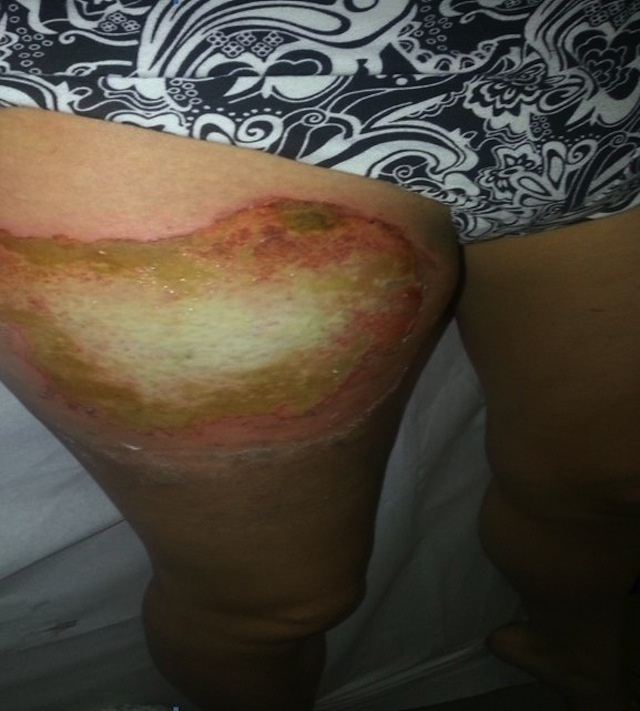 Woman's Legged Burned by Phone Explosion