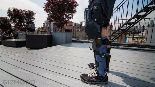 I Wore a Bionic Leg, And I Never Wanted To Take It Off Again