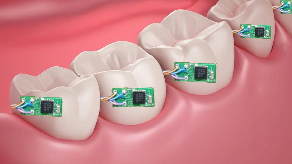 k bigpic Digital teeth tells your doctor when you smoke and drink