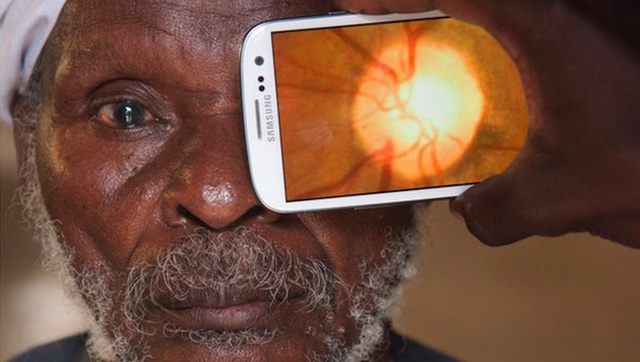 Your Smartphone Can Now Be Your Eye Doctor