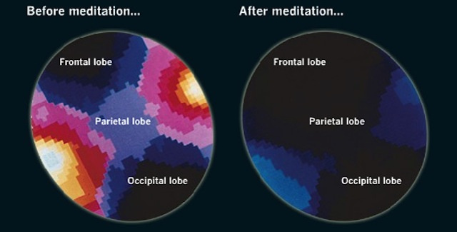What Meditation Does To The Brain