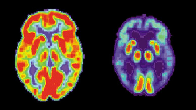 The First Evidence That Alzheimer's Can Be Thwarted With A Pill