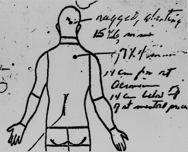 Reason for Conspiracy? 5 Mysterious Details From JFK's Autopsy