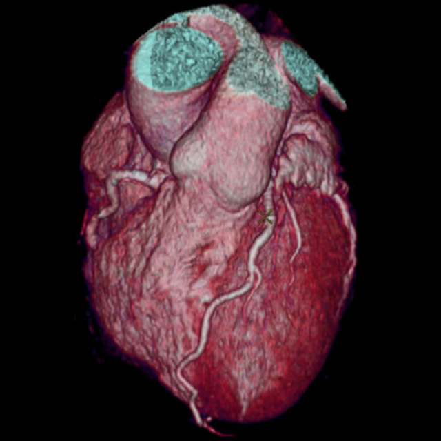 GE's New Fast CT Scanner Captures Insane Images in a Heart Beat