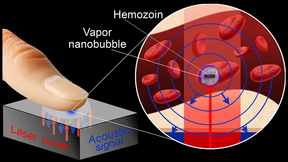 This Laser Can Hear Malaria Eating Your Red Blood Cells