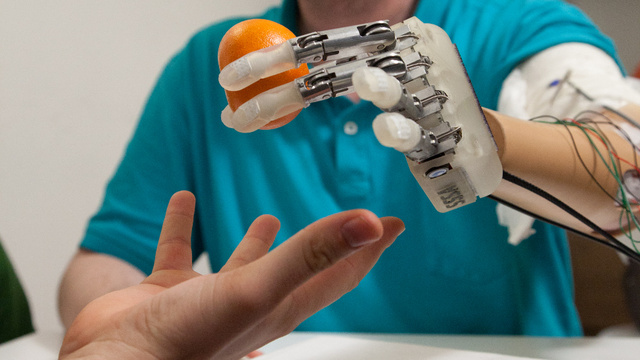 This cybernetic hand is the first to give amputees a sense of touch