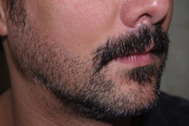 Hipster Beard Transplants Are All the Rage These Days